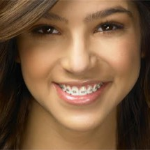 Tratamento ortodôntico corretivo (Ortodontia) em adolescentes e adultos. Santa Maria 11/01/2010.