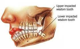 Cirurgia dentoalveolar, cirurgia oral ou bucal