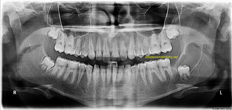 Cirurgia das patologias orais e maxilofaciais