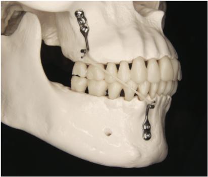 Cirurgia pré-protética e implantes dentários