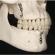 Thumb Cirurgia pré-protética e implantes dentários