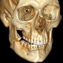Traumatologia facial