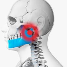 Tratamento das Disfunções da Articulação Temporomandibular (DTM)