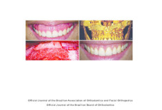 Orthodontic retreatment using anchorage with miniplate to camouflage a Class III skeletal pattern